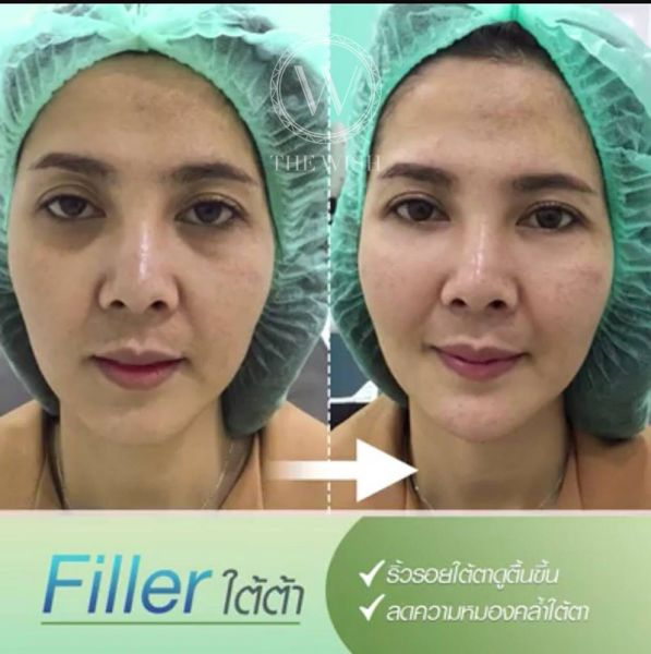 Filler before after2