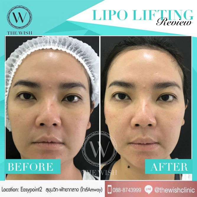 LIPO before after5